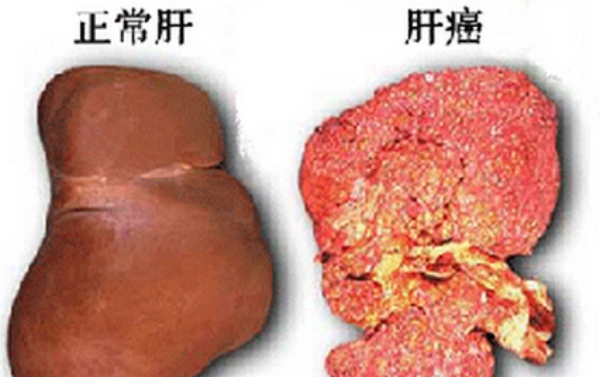 肝癌一發現多已晚期!十五個信號提示你必須養肝!再晚就來不及了...