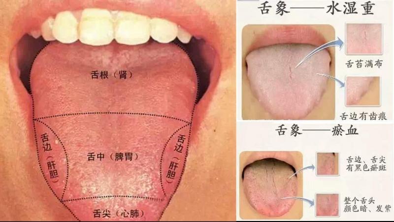 老中醫看你的舌頭就知道你的身體情況,知道為什麼嗎?...