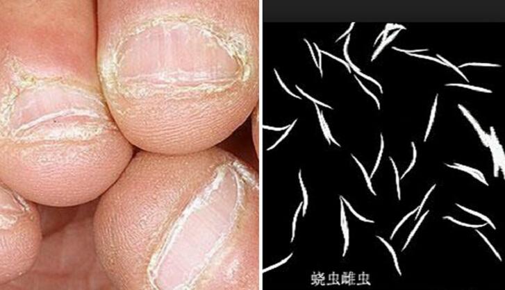 7歲女童愛咬指甲...半夜屁眼鑽出大量蟯蟲!家長一定要注意....