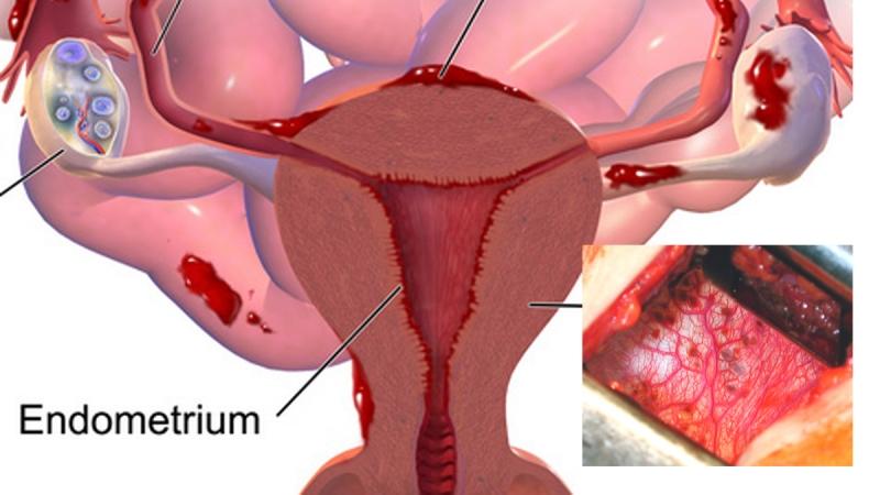 女人應該抓緊月經時徹底排毒!吃這些瞬間掃光體內長久毒素!...