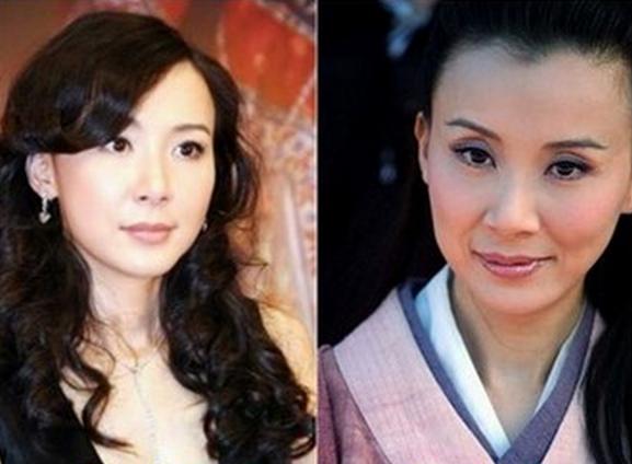 出現整容後遺症的明星真是悲劇了!連台灣第一美女都這樣慘......