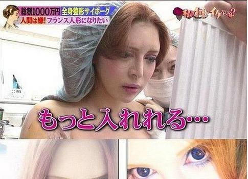 日本女花1000萬整容30次,結果卻變成這樣...........