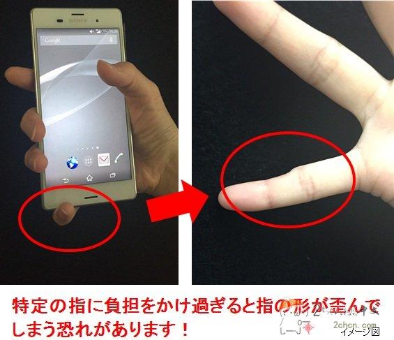 千萬不要再過度玩手機了!否則你手指也可能變形成這樣...手癌...