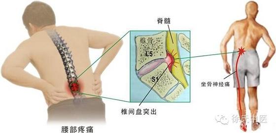 復健師教你腰間盤突出不花錢的療法,輕的幾次立即見效!!...