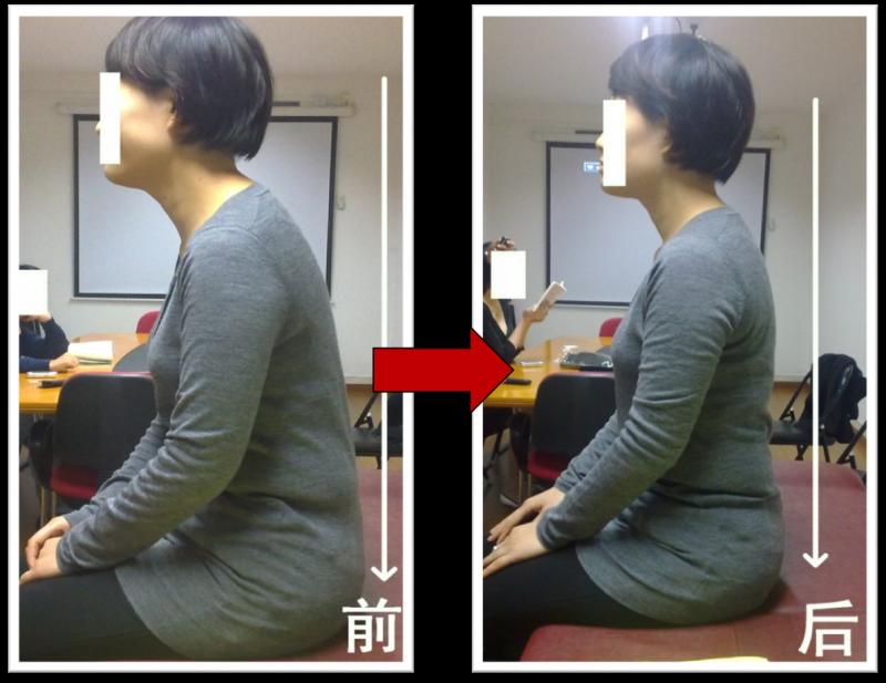 脊椎不好真痛苦,終於找到矯正脊椎好方法了!(快分享給朋友)...