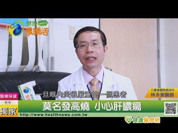 莫名發高燒小心肝膿瘍...