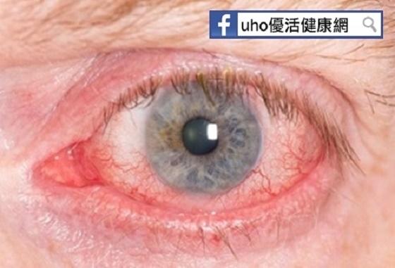 恐怖!男子騎車飛砂入眼亂揉,竟角膜潰瘍險失明........