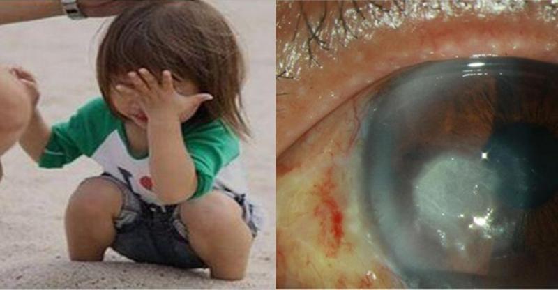 帶孩子去海邊玩,結果「沙子跑進眼睛裡」卻造成終身失明!沙子進...