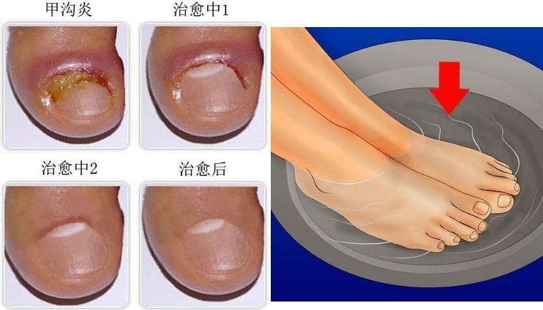 痛死了!腳指甲長進肉裡發炎怎麼辦?剪了30年指甲才知道......