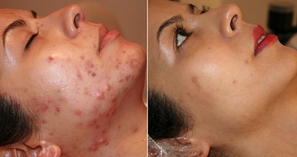 科學秘招:臉上長痘痘怎麼調理?還你美嫩肌膚!...