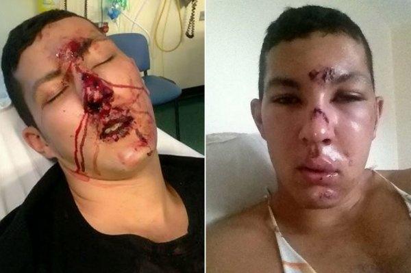 他見義勇為救人卻被歹徒打殘臉部,醫生幫他整容後卻改變了他一生...