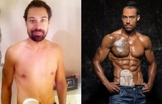 33歲英國男子切除全部結腸,健身10年逆轉命運...