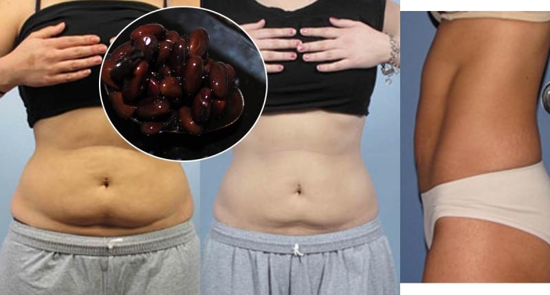 讓你瘦到尖叫!5種食物搭配「醋」居然這麼強,吃後一個月輕鬆瘦...