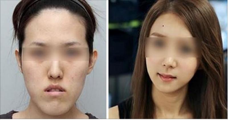 女孩受不了男友的抱怨,決定去韓國整容,動手術前,院長給了她一...