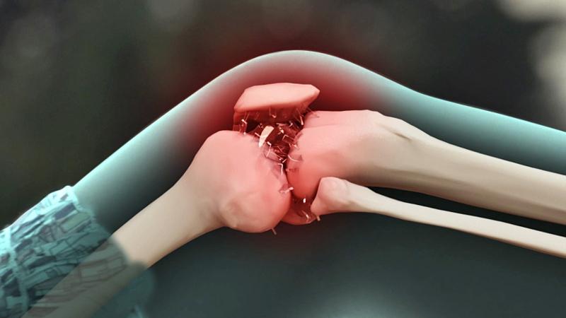 關節響是什麼問題?膝蓋、手指、下巴軟骨、肩膀...影響程度可...