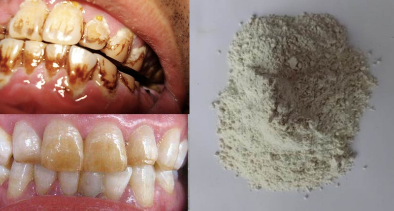 真的超噁!「黃牙垢」影響美觀又會發臭!但光靠這些食物竟然能有...