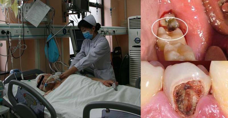 牙痛千萬不能忍!!!他就是因為牙痛丟了命......