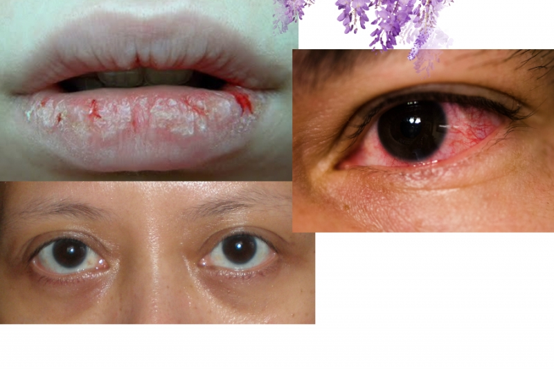 臉不乾淨就是內臟有病!黑眼圈、嘴裂、眼睛血絲代表了…...