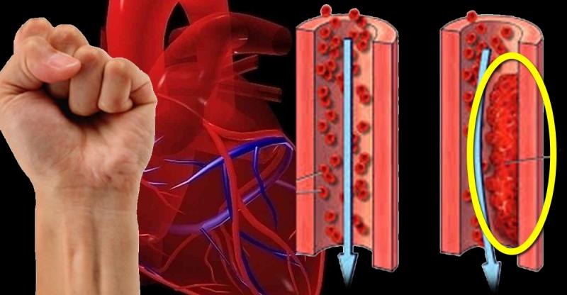 你的血管健康嗎?握拳5秒就能測出答案!!...