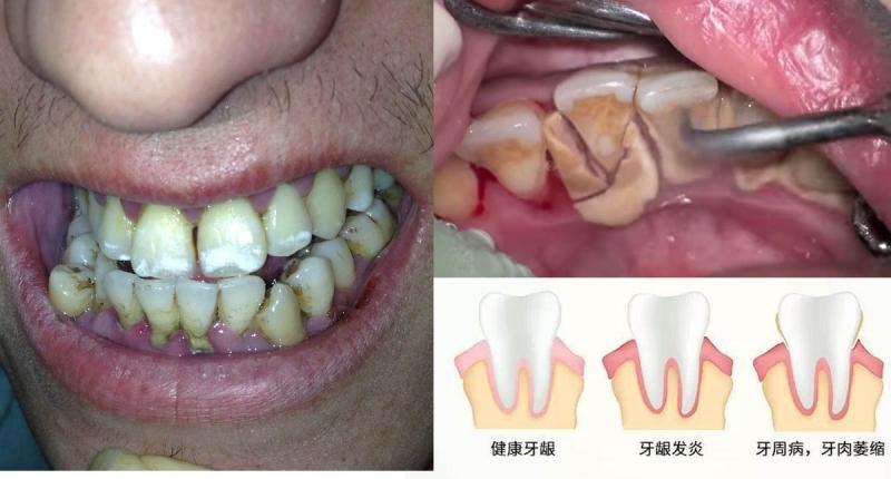 「洗牙」時又酸又疼、齒縫越洗越大!難道洗錯了嗎...?洗牙的...