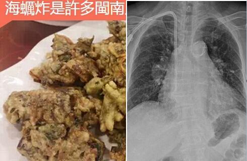 婦人吃了「炸海蠣」,胸腔整個「破裂」,醫生在她胸腔內發現大量...