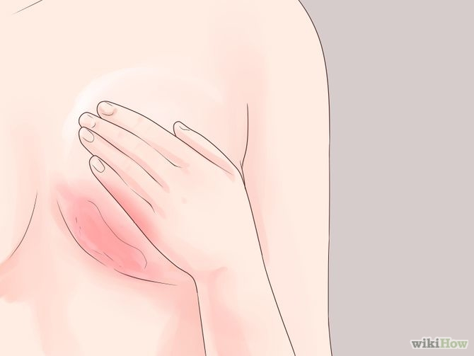 Recognize Signs of Breast Cancer Step 3 Version 2.jpg