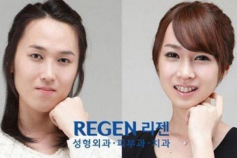 韓國人的整形技術已經無法無天了!這世界上沒人可以阻止。。。...
