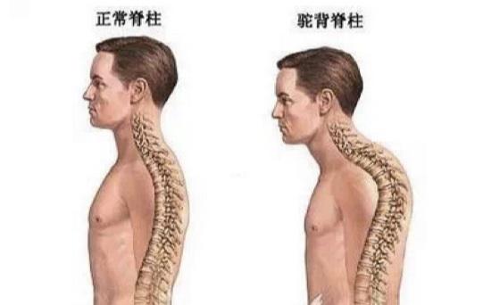 改善日常駝背問題,只要做這五個動作...背痛,腰痛,頸椎痛都...