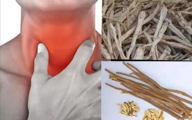 咽喉炎用這妙方,治一個好一個!能恢復健康的喉嚨真是太美妙了~...