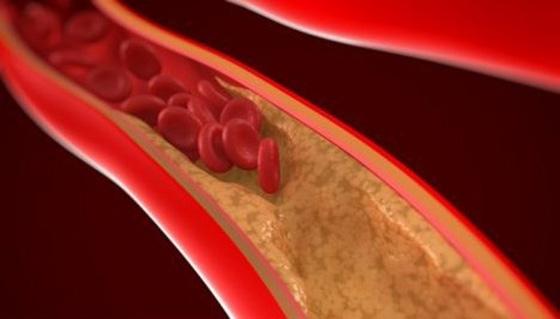保持血液健康一定要多吃這幾樣!!太重要了~千萬別等心血管疾病...