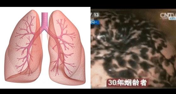 超恐怖!吸二手菸得肺癌機率高3倍?竟然還會引發...千萬不要...