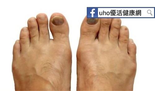 腳趾黑條紋不以為意他竟罹惡性黑色素瘤...
