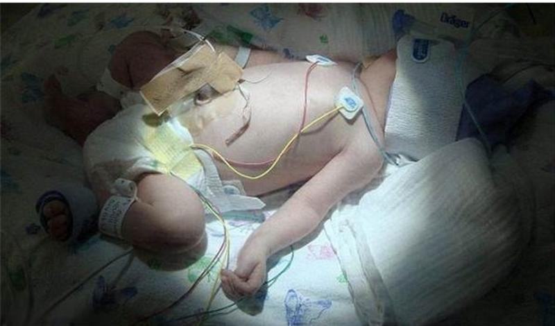 天生體內沒有血液的嬰兒居然奇蹟般地活下來,現在已經上小學了....