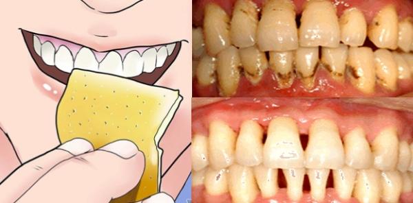 怎麼這麼好!!!不用洗牙就能去除牙菌斑的六個方法!這所有人都...