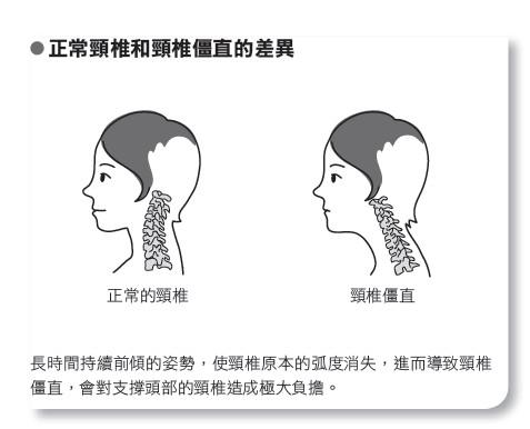 【醫療保健】什麼?女性比男性更容易肩頸痠痛?!...