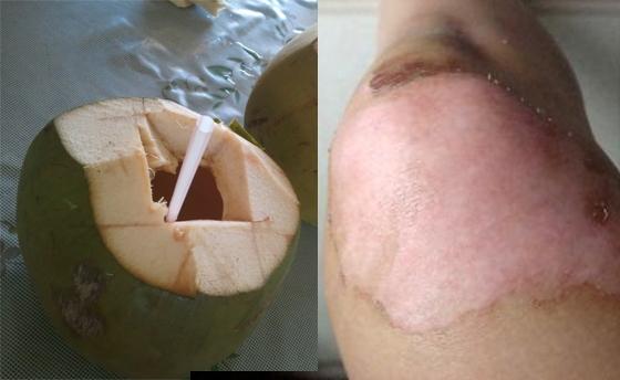 很重要!!請分享讓更多人知道~原來喝椰子水燒燙傷口就復元!!...