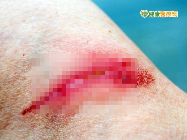 燒傷慌張脫衣恐影響傷口治療...