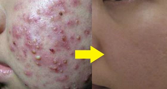 只要這麼做~就能有效去痘去疤~還能消除皺紋?!太驚喜了!我現...