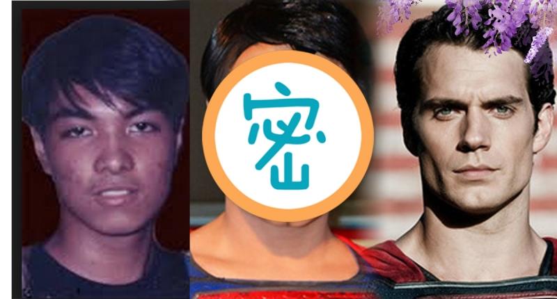 男子花了18年動23次手術,終於把自己整得比「超人」還帥!只...