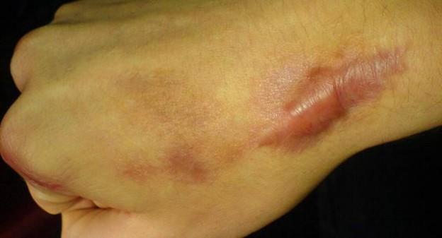 體質影響蟹足腫,應避免手術、蚊蟲叮咬與外傷|早安健康NEWS...