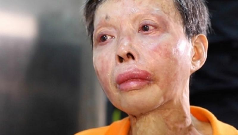 她,曾90%燒燙傷,痛苦不堪的她是這樣挺過來的…堅強到讓人不...