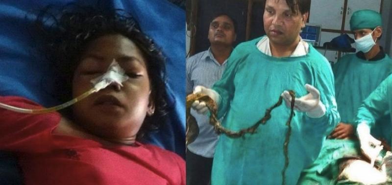 恐怖!15歲少女因不明原因一直嘔吐不止,直到醫生開刀從她體內...