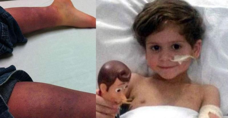 這個小男孩患病72小時後被截肢,當醒來知道自己以後沒有腳時,...