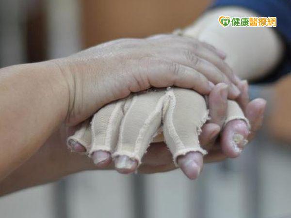 幫助塵爆傷患復健職能治療師公會成立粉絲團...