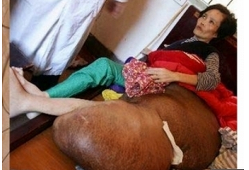 太可怕了!!女子腳上黑痣成了惡性瘤,只因常做這件事……還是女...