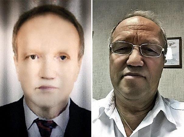 俄羅斯一名65歲白人男子接受了非洲黑人捐出的肝臟移植後,竟然...