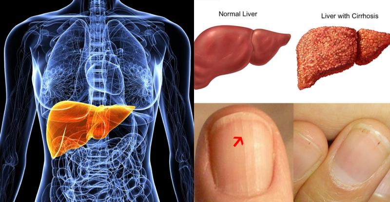 如果有這4個症狀,小心毒素已經悄悄住進你的肝臟!!!快看看自...