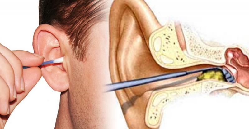 重要!!該怎麼正確不傷耳的清耳垢?原來清耳垢千萬不能用棉花棒...