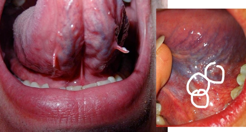 舌下的「青筋」正常嗎?一旦出現深青或暗紫色就代表著....!...