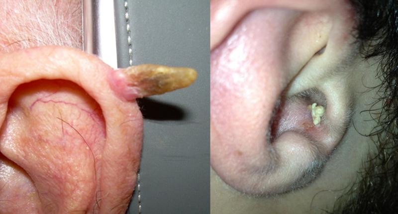 太可怕了!你的5大NG習慣正在養「耳裡的痘」!它正告訴你,你...